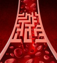 Blood circultation problems and blocked arteries health care concept with a human artery that has a blockage shaped as a maze or labyrinth as a metaphor for the medical challenges ofpoor blood cell flow and circulatory illness.